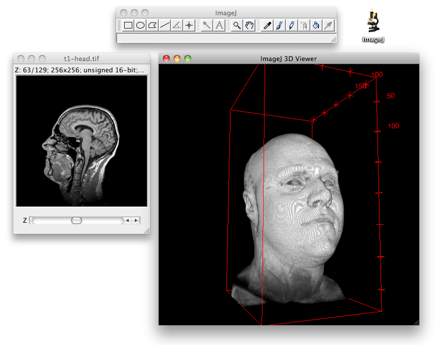 The T1 Head sample dataset visualized using Fiji's 3D Viewer plugin, installed via the Fiji update site.